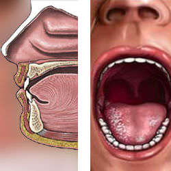 Aftas en la garganta