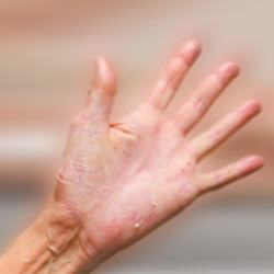 sarpullido en las manos tratamientos